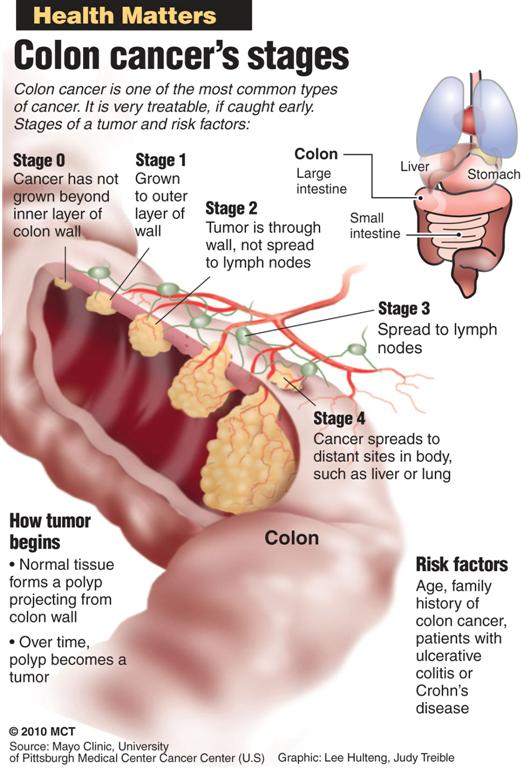 Colon Cancer Is Cancer That Infects The Large Intestine As